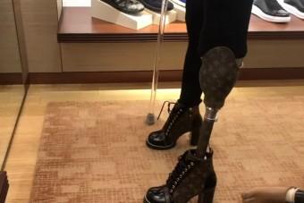 Luxustáskából csináltatott magának protézist a lábát elveszítő modell