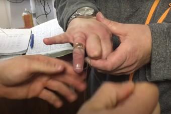 Lifehack: így húzd le egy cérnával a gyűrűt, ha az rászorult az ujjadra