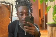 Aranyláncokat ültetett haja helyére a rapper 1